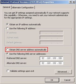 Obtain DNS server address automatically